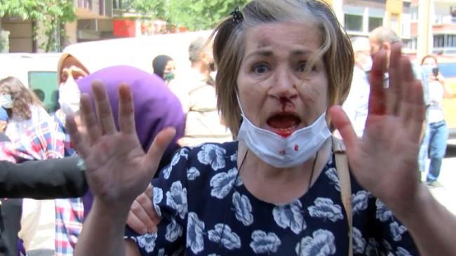 İmamoğlu ve İBB'yi protesto eden kadını bu hale kim getirdi?