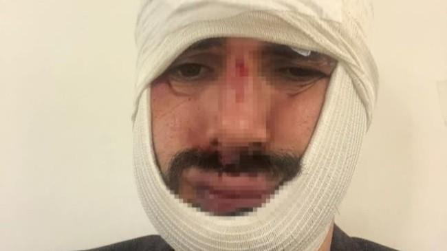 Anadolu Ajansı muhabiri Biçeroğlu'nu darp eden saldırganlar tutuklandı