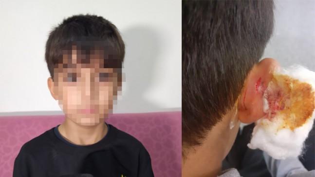 Küçükçekmece'de vahşi bir öğretmen çocuğun kulağını çekerek yaraladı!